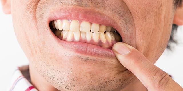 歯茎がかゆいときにやってはいけないこと