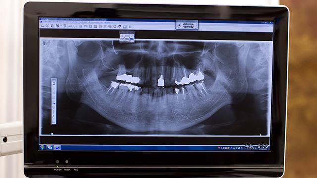 歯根嚢胞の治療法