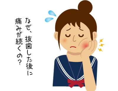 ドライソケットの症状・治療の基礎知識!