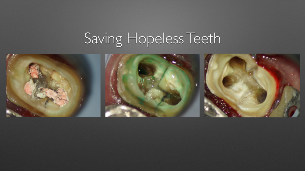 吉松歯科医院の歯が割れた際の治療