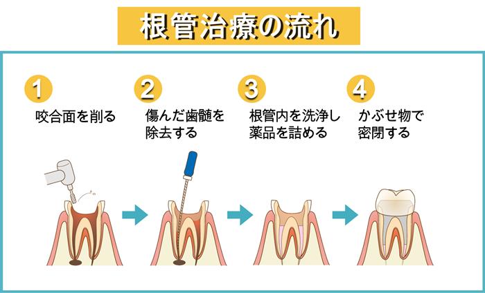 根管治療の図解