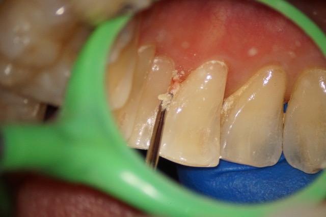 歯周病治療②