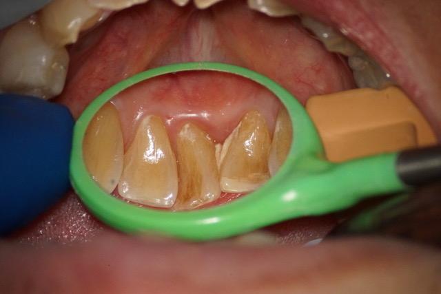 歯周病治療③