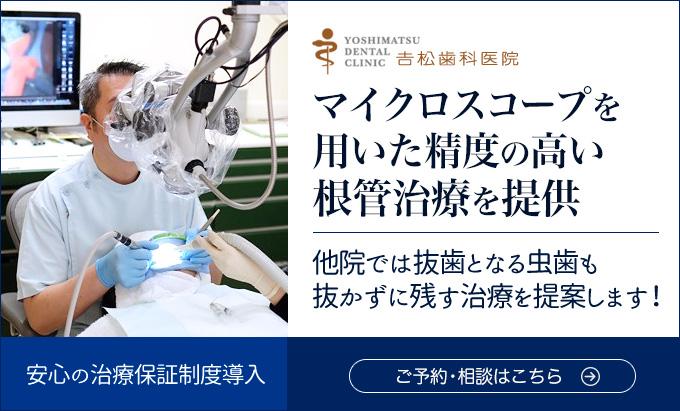 根幹治療|吉松歯科医院
