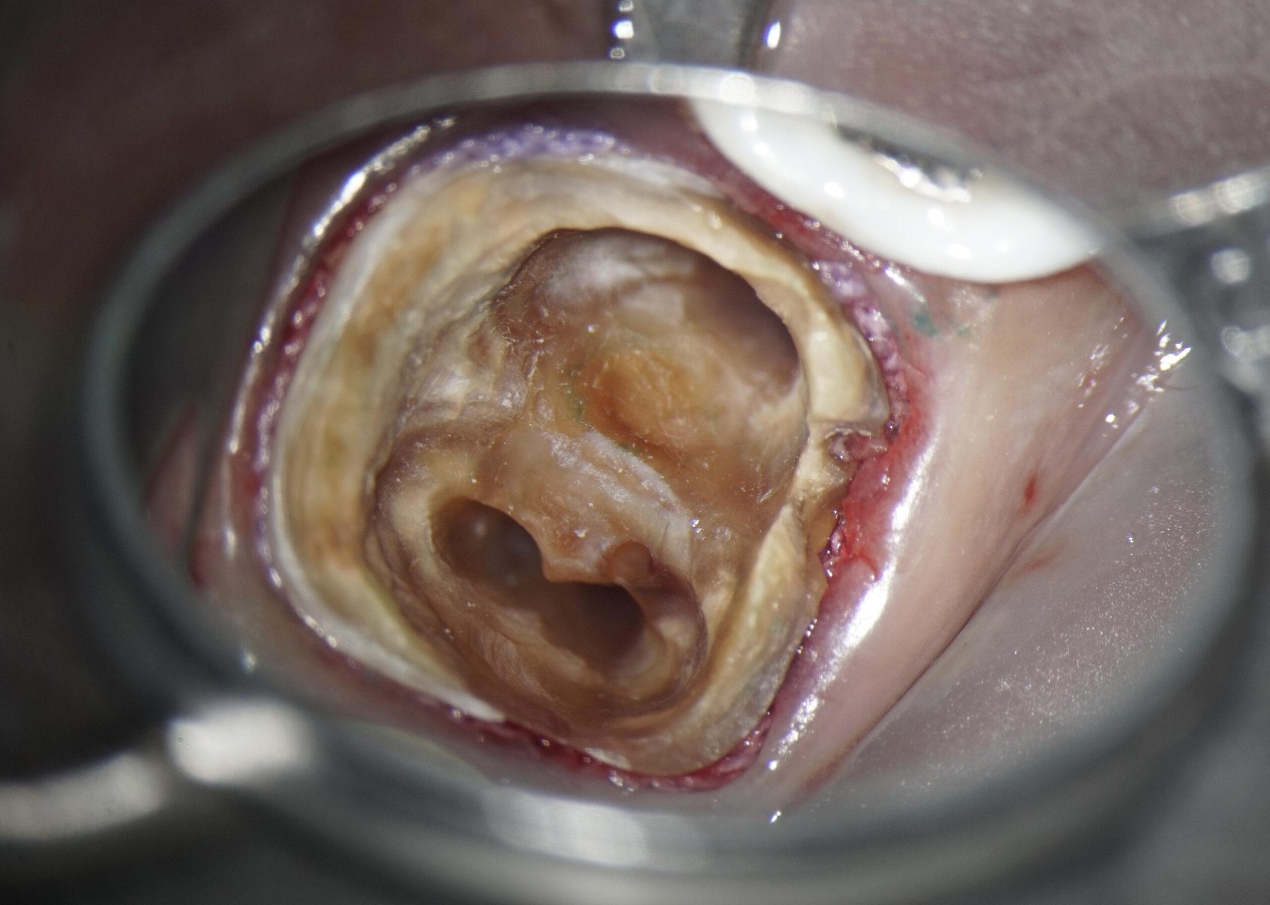 根管治療の放置